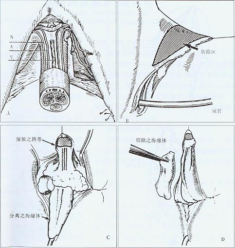 阴蒂整形术操作过程